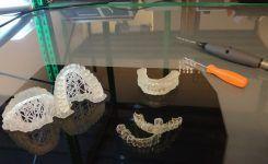 LA STAMPA 3D PER REALIZZARE MODELLI DI ARCATE DENTALI