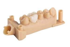 Resine Formlabs per la stampa 3D SLA: Dental model