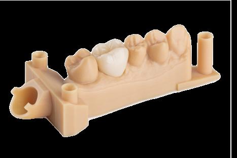 Dental-model-formlabs